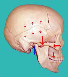 頭頂側頭縫合は鱗状縫合で可動しやすいが、黒○の部分は直線縫合になっていてほとんど動きません。黒○の部分を支点として側頭骨が頭頂骨の上を上後方に転位します。
